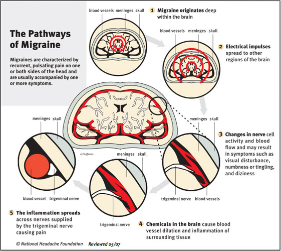 The Pathways of Migraine Illustration