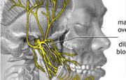 Central Nervous System and Migraines