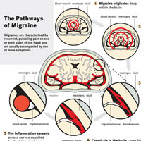 New Life Outlook -  Infographic: Pathways of Migraines in the Brain